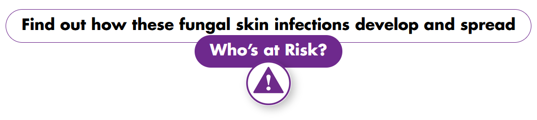 Find out how these fungal skin infections develop and spread
